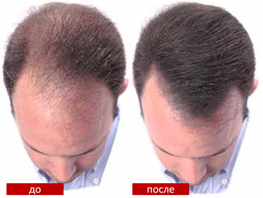 Формула роста волос у мужчин
